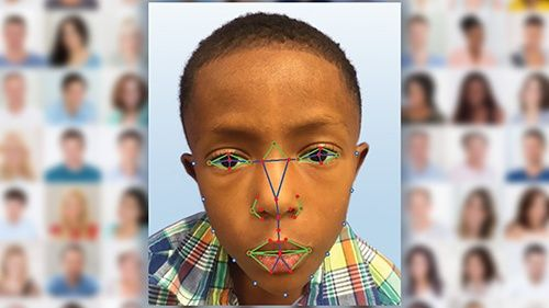 Facial Recognition Technology is Being Used to Diagnose Rare Diseases