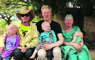 NHS doctor Oscar Duke, who you might recognise from 24 Hours in A&E, has albinism: a lack of melanin in the body.