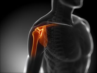 shoulder injuries, bone, joint, rotator cuff, tendinitis, bursitis