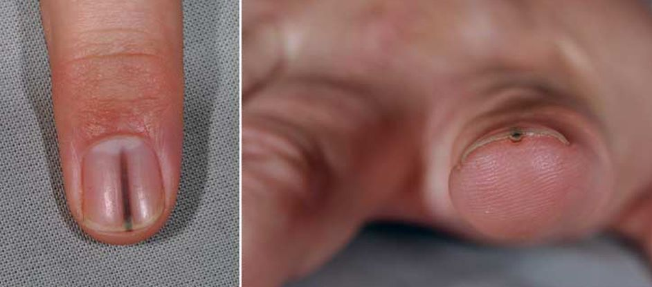 Man S Nail Splinter Was Really A Tumor Live Science