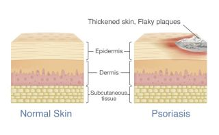 What Is Psoriasis? | Live Science