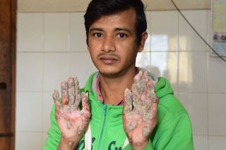 "A photo of Abul Bajandar, also known as ""tree man,"" take on Jan. 31, 2018. After 24 surgeries, the unusual growths on his hands and feet are starting to come back."