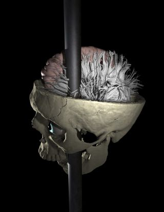 Image of the rod passing through Phineas Gage's skull and brain.