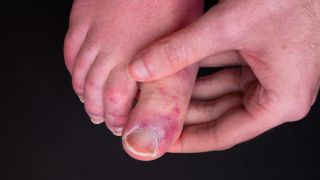 close up of a person's foot which bears reddish-purple rashes; a hand is holding the foot
