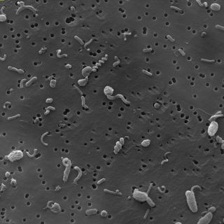 Marine Bacterial Community. An electron microscope image of a bacterial community, on a filter. These microbes were collected 820 feet (250 meters) below the Sargasso Sea near Bermuda.