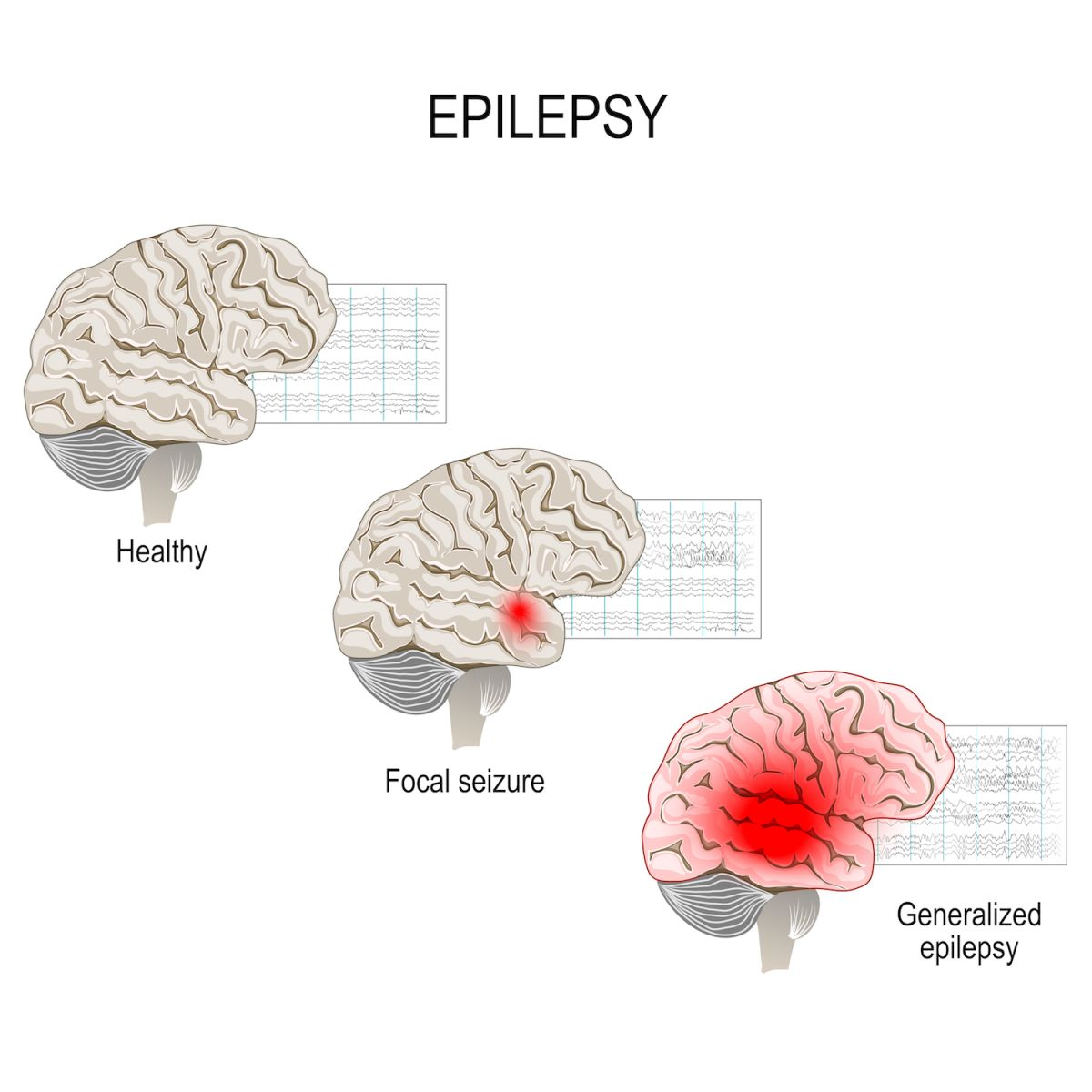 What Is Epilepsy? | Live Science