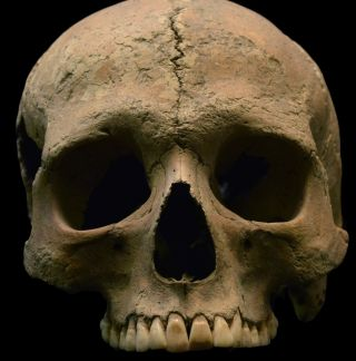 Scientists examined DNA from tooth pulp from skeletal remains found in three Italian cemeteries, including this skull from Velia, considered an important port city and trading center.