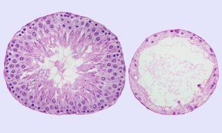 Treated seminiferous tubules