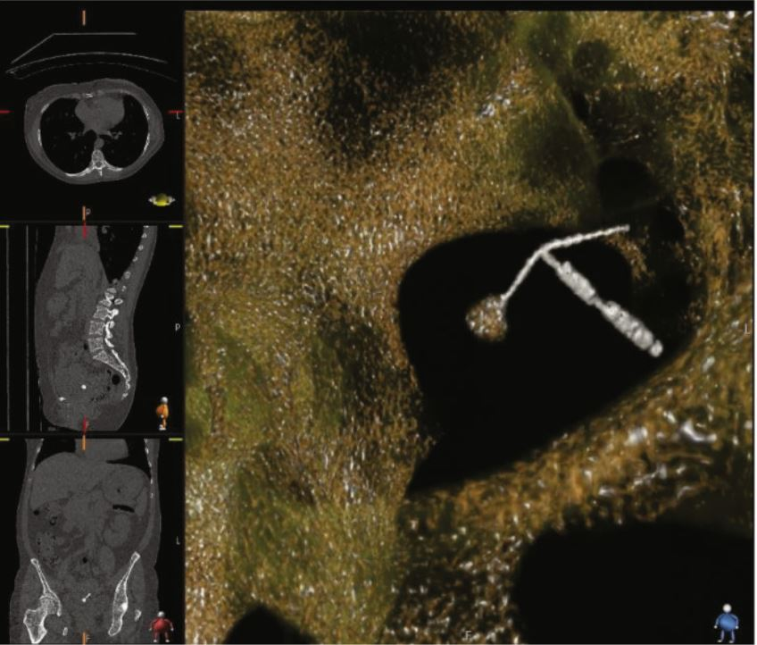 CT scan showing the IUD perforating the bladder, with a stone attached to one IUD arm.
