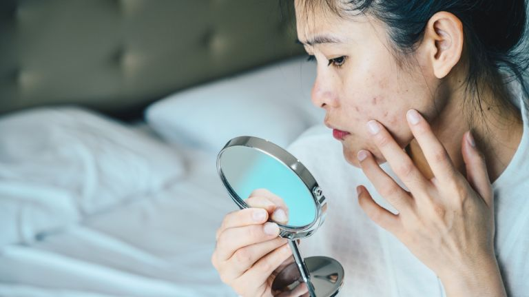 Close up of Asian woman worry about her face when she saw the problem of adult acne and scar by the mini mirror. - stock photo