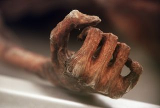 The mummified hand of Otzi the iceman, who died in the Alps some 5,300 years ago.