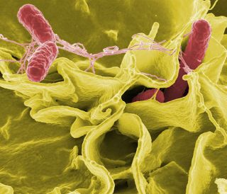 Salmonella typhimurium (red) invades cultured human cells in this color-enhanced scanning electron micrograph.