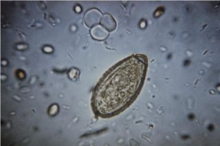 An image showing an egg of the parasitic worm Clonorchis sinensis, which is a type of liver fluke.