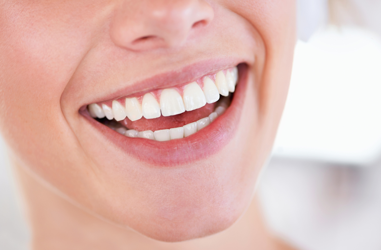 Does teeth whitening really hurt? W&H Beauty Editor finds out...