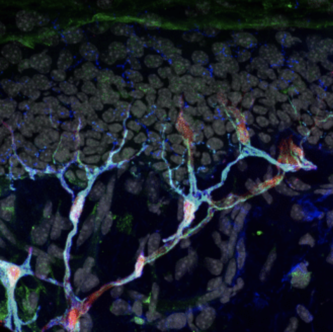Researchers discovered a new organ sitting below the outer layer of the skin. The organ is made up of nerves (blue) and sensory glia cells (red and green).