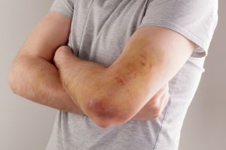 A man crossing his heavily bruised arms.