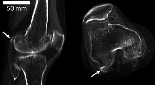 The fabella (white arrows), a tiny bone hidden in the tendon of the knee, is increasing in prevalence in the population.