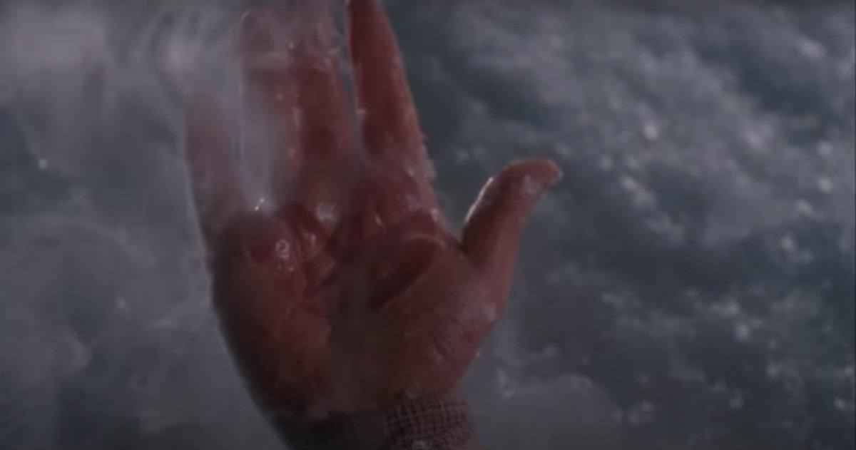 Harry's burned hand.