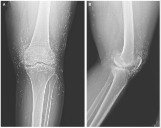 An X-ray image of a patient's knees reveals acupuncture needles left in the tissue.