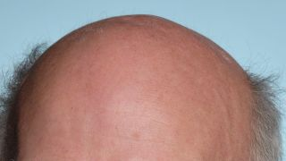 Have we finally found a cure for baldness?