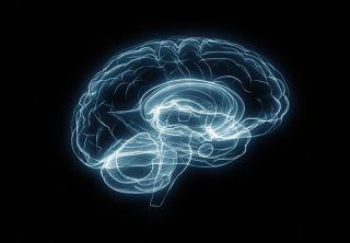 Human Brain X-Ray