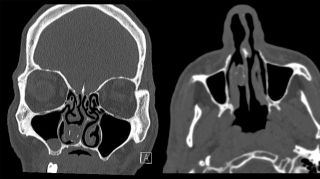 CT scan showing a firm grey mass in the man's right nasal cavity