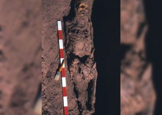 This image show the mummy of an ancient Egyptian man in his 50s who had rectal cancer.