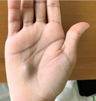 bump on my thumb