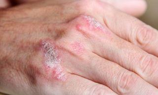 psoriasis-hand-11081702