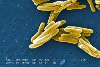 Scanning Electron Micrograph of Tuberculosis