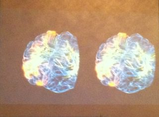 a projection screen showing the interior of a brain in real-time.