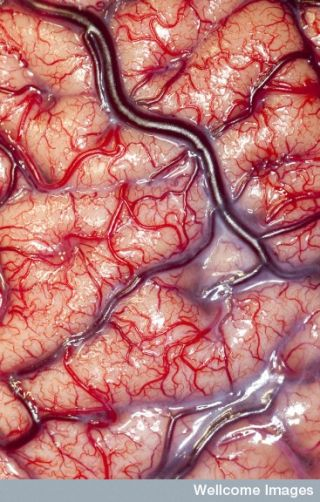 A photo of a living brain.
