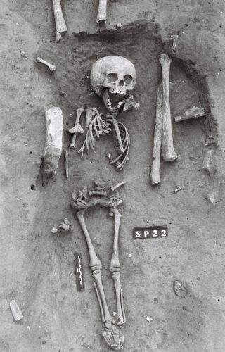 skeleton of child from medieval france who may have had Down syndrome.