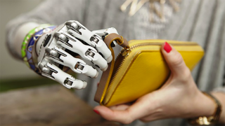 British woman receives 'anatomically accurate' prosthetic hand