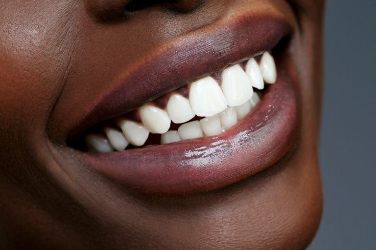 Teeth whitening - perfect bright teeth