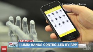 Bionic hands iPhone app