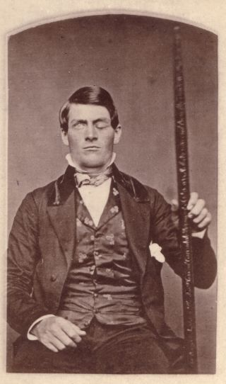 "Phineas Gage poses with his ""constant companion,"" the tamping iron that was removed from his brain."