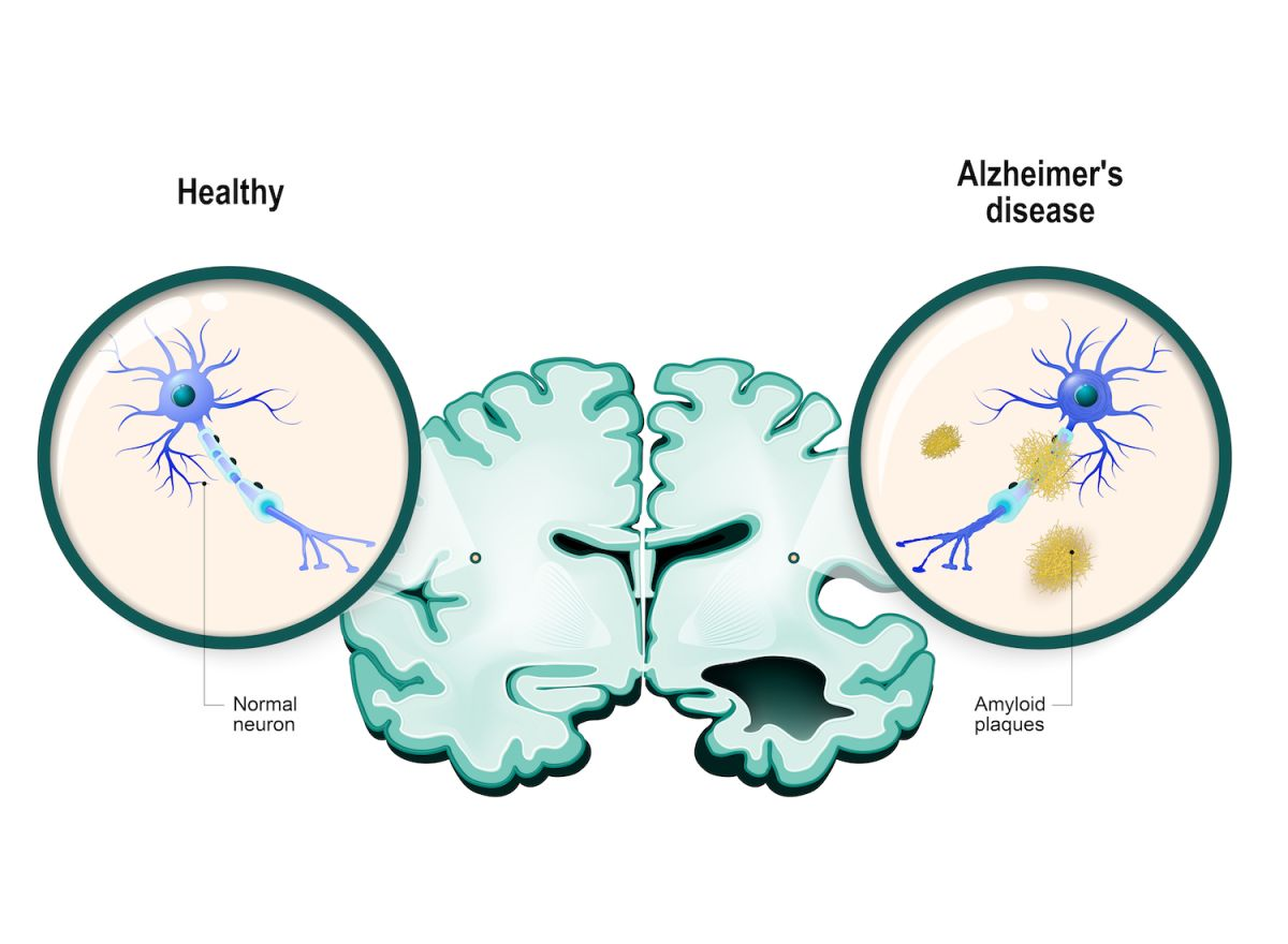 Alzheimer's Disease: Brain Changes, Symptoms and Treatment | Live