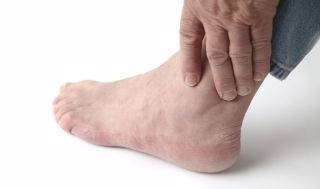 What Is Gout - Causes, Symptoms and Treatment | Live Science