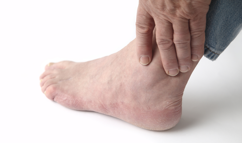 What Is Gout - Causes, Symptoms and Treatment   Live Science
