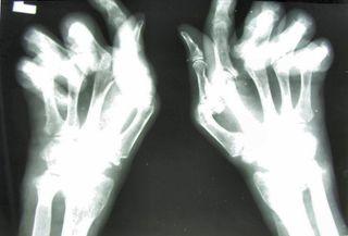 Hand x-ray, rheumatoid arthritis