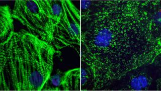When scientists mixed the new coronavirus with heart cells in a lab dish, the virus appeared to carve heart muscle fibers into small fragments. On the left, an image of healthy heart muscle cells, which have long fibers that allow them to contract. On the right, an image of heart muscle cells infected with SARS-CoV-2 in which the long fibers appeared to be diced into small pieces.
