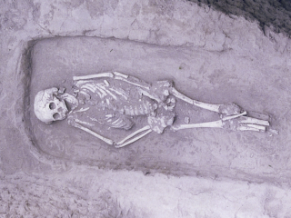 A skeleton found in China belonged to an individual with a rare form of dwarfism.