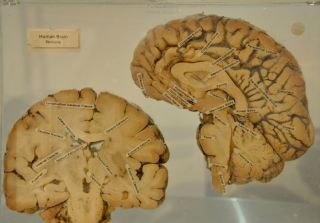 Labeled brain cross section