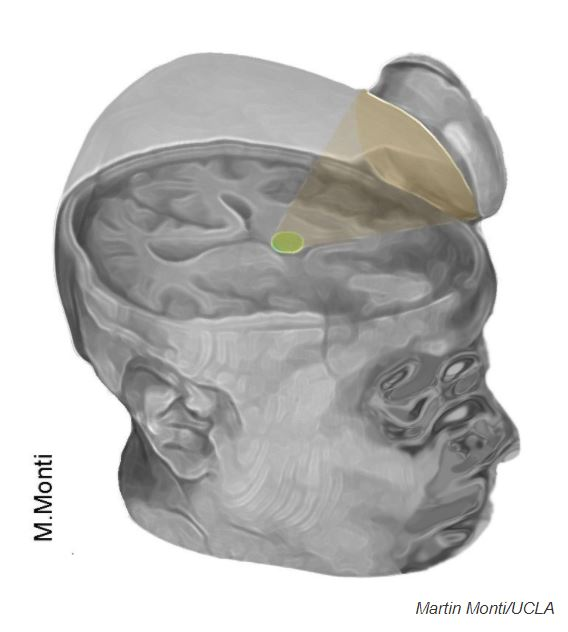 The researchers used a saucer-like device to aim ultrasonic pulses at the brain's thalamus.