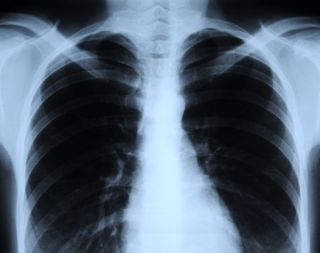 chest x-ray lung cancer deaths