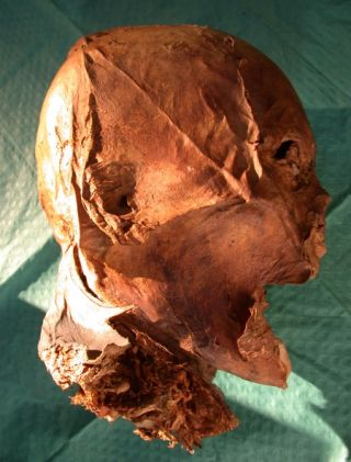 henry iv's embalmed head