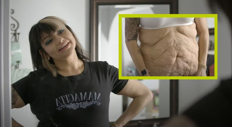 Karla, from Minnesota, comes to terms with weight loss