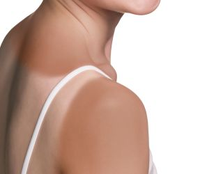 A woman's shoulder shows an uneven suntan.