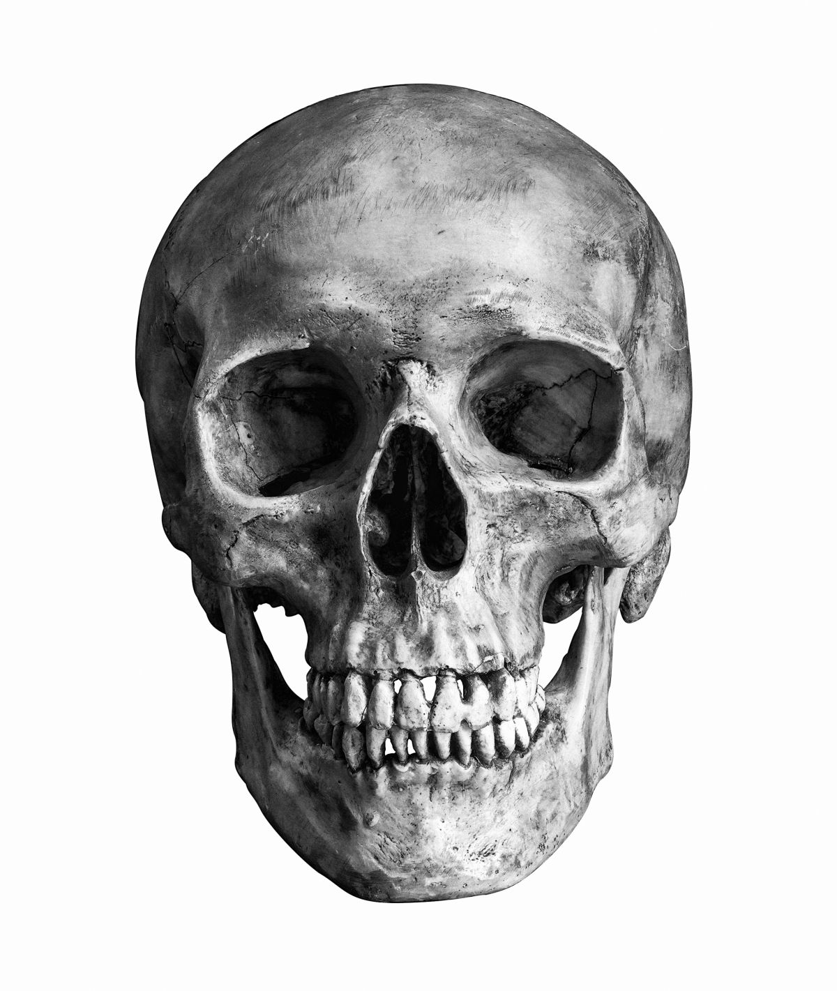 The Human Skull Obeys the 'Golden Ratio,' Study Suggests. Anatomists Say That's Ridiculous.
